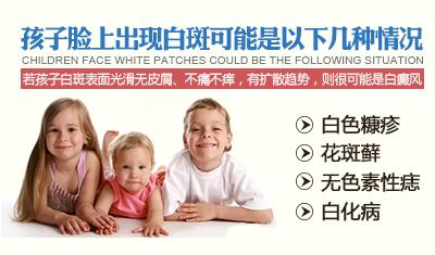 小孩脸上有白斑怎么办
